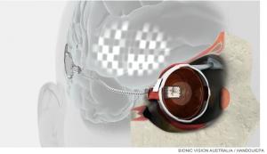 oeil bionique, aveugle, rétine, prothèse rétinienne