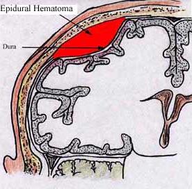 Hématome extra-dural, urgence médicale