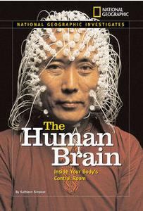 Stimulation électrique cérébrale